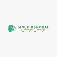 Mole Removal Orange County