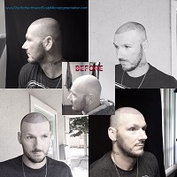 Pacific Northwest Scalp Micropigmentation